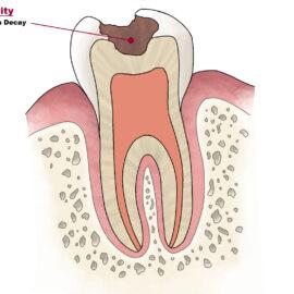 Back Pain vs. Mouth Pain