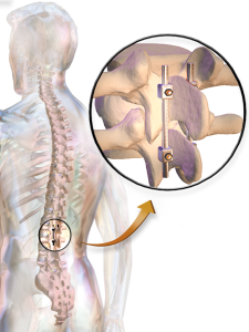 Posterior Lumbar Fusion – Back in Control